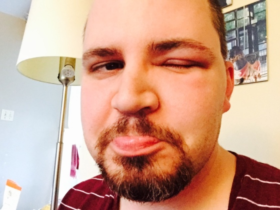 Man having allergic reaction of eye from bee sting